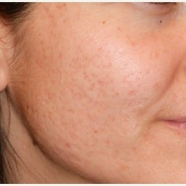 35-44 year old woman treated with Fractional CO2 Laser for Severe Acne Scars before 1696699