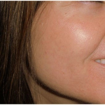35-44 year old woman treated with Fractional CO2 Laser for Severe Acne Scars after 1696699