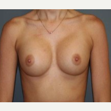 25-34 year old woman treated with Breast Implants after 3303894