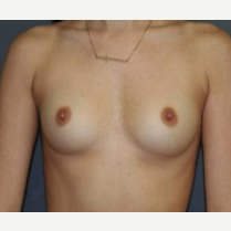 25-34 year old woman treated with Breast Implants before 3303894