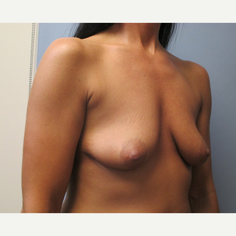 35-44 year old woman treated with Breast Lift with Implants before 3539014