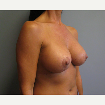 35-44 year old woman treated with Breast Lift with Implants after 3539014