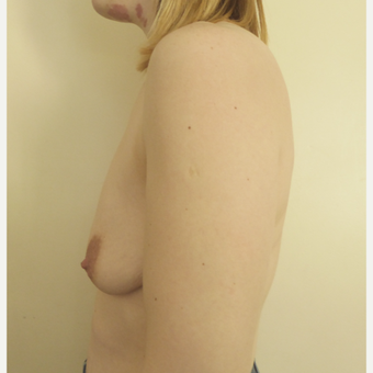 35-44 year old woman treated with Breast Lift before 3428164