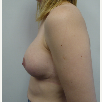 35-44 year old woman treated with Breast Lift after 3428164