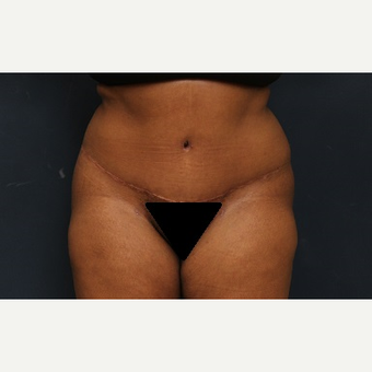 25-34 year old woman treated with Tummy Tuck after 3344881