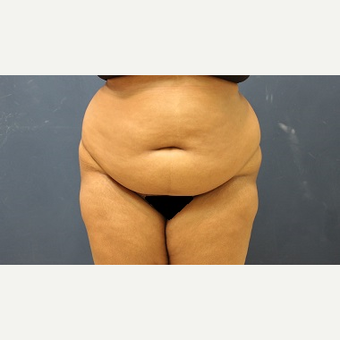 25-34 year old woman treated with Tummy Tuck before 3344881