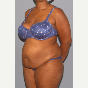 25-34 year old woman treated with Tummy Tuck before 3558464