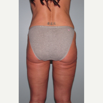 45-54 year old woman treated with Liposuction Revision after 3644253