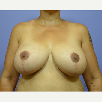 45-54 year old woman treated with Breast Lift with Implants after 3329430