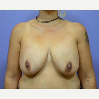 45-54 year old woman treated with Breast Lift with Implants before 3329430