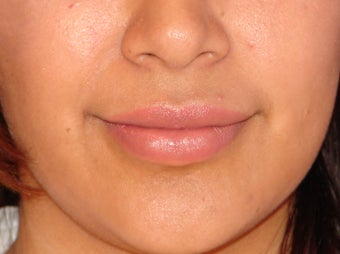 Filler for Smile Lines and Lips