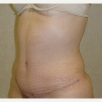45-54 year old woman treated with Tummy Tuck after 3288121
