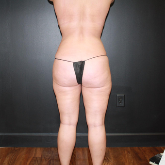 25-34 year old woman treated with Liposuction after 3215300