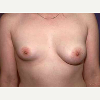 18-24 year old female treated with Breast Augmentation for Breast Asymmetry before 3815549