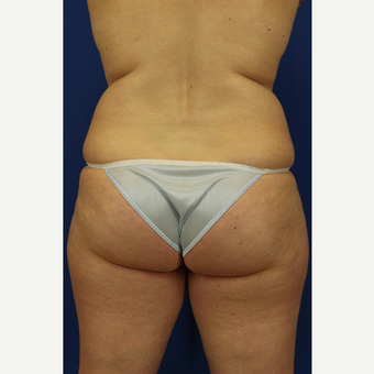 35-44 year old woman treated with Liposuction before 3748190