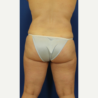 35-44 year old woman treated with Liposuction after 3748190