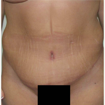 Tummy Tuck for this 45 Year Old Woman after 3092613