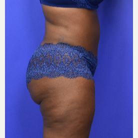 35-44 year old woman treated with Tummy Tuck after 3582798