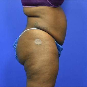 35-44 year old woman treated with Tummy Tuck before 3582798