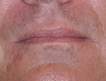 35 Year Old Male Who Desired Larger Lips before 739013