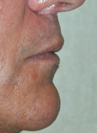 35 Year Old Male Who Desired Larger Lips 739013