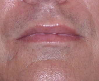 35 Year Old Male Who Desired Larger Lips after 739013
