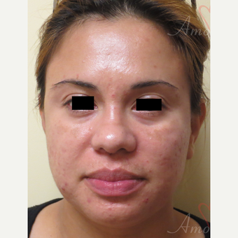 25-34 year old woman treated with Fractional CO2 Laser before 3375113