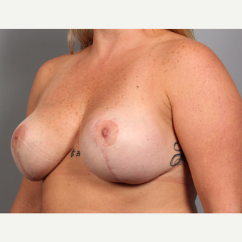 35-44 year old woman treated with Breast Implant Revision after 3588492