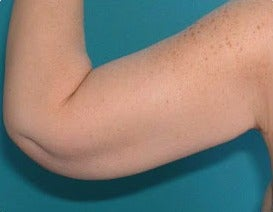 35-44 year old woman treated with Arm Lift after 3374803