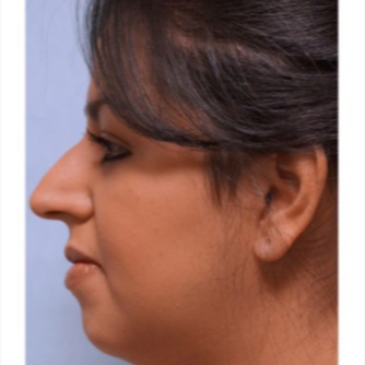 25-34 year old woman treated with Rhinoplasty before 3691912