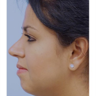 25-34 year old woman treated with Rhinoplasty after 3691912