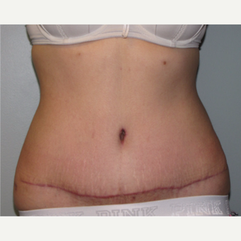 18-24 year old woman treated with Liposuction after 3140142