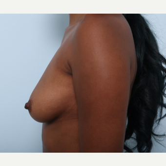 Breast Augmentation before 3425537