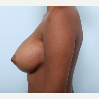 Breast Augmentation after 3425537