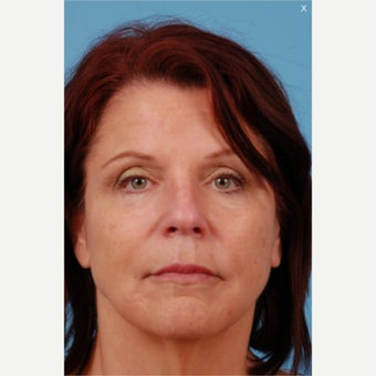 Liquid Facelift: 55-64 yr old female after 1606751