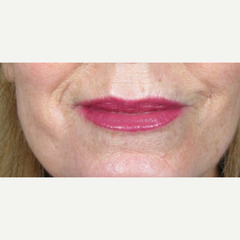 Lip Augmentation after 3065458