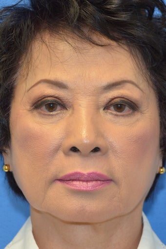Asian Female Treated with Buccal Fat Removal before 994338