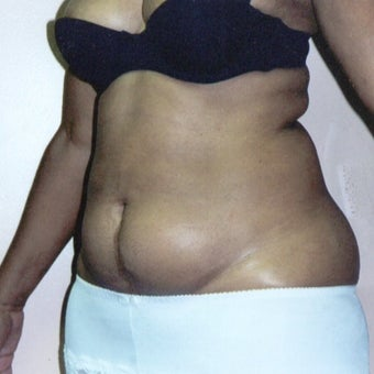 55-64 year old woman treated with Liposuction 1540414