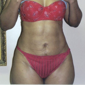 55-64 year old woman treated with Liposuction after 1540414
