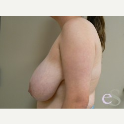 Breast Reduction before 3373538