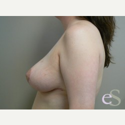 Breast Reduction after 3373538