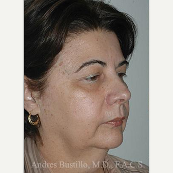 58 year old woman treated with Facelift before 3486348