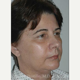 58 year old woman treated with Facelift after 3486348