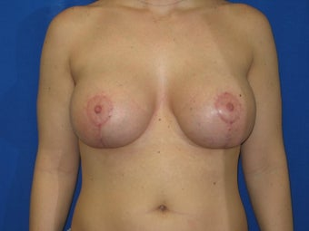 Breast Lift with Saline implants after 1394965