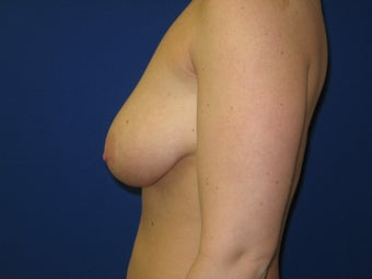 Breast Lift with Saline implants 1394965