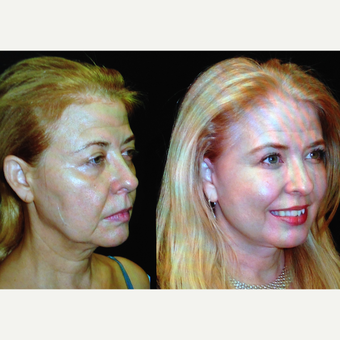 55-64 year old woman treated with Facelift before 3680468