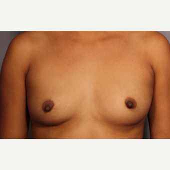 25-34 year old woman treated with Breast Augmentation before 3319784