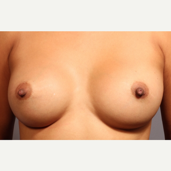 25-34 year old woman treated with Breast Augmentation after 3319784