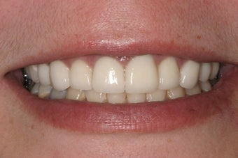 Dental All Porcelain Crowns 370876