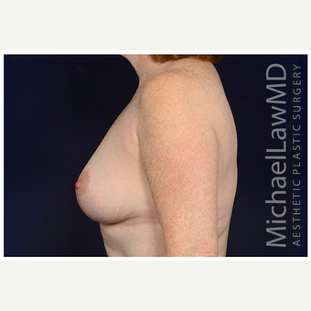 45-54 year old woman treated with Breast Lift after 3070815